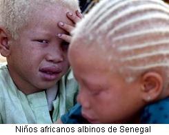 ninos_albinos_senegal