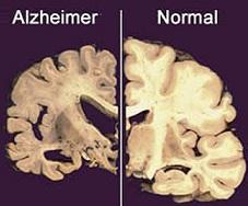 Comparación de cerebros