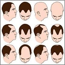 Las causas de la alopecia a las mujeres de edad avanzada