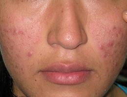 Posto o pungiglione su una faccia