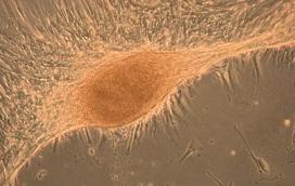 hígado regenerado por células madre de placenta