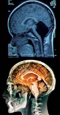 TAC del cerebelo