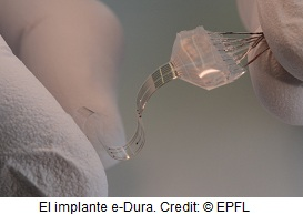 The e-Dura implant