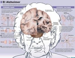 Cerebro y Alzheimer